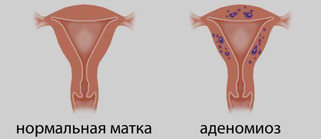 Аденомиоз матки - стадии