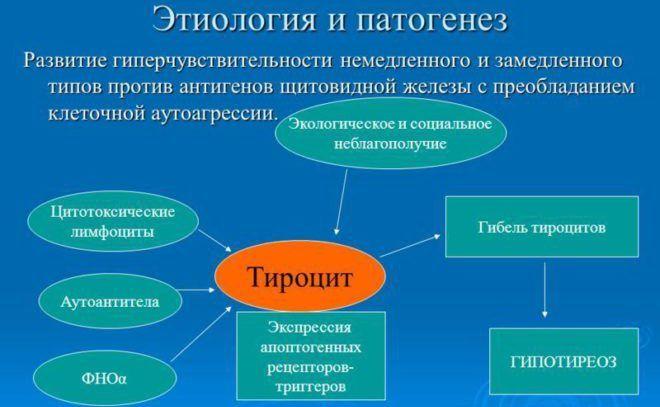 Что такое аутоиммунный тиреоидит
