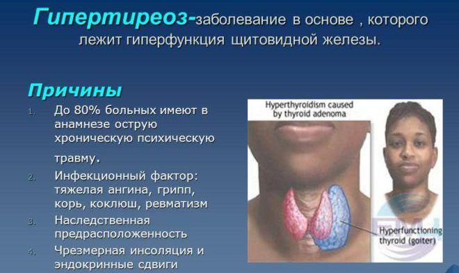 Что такое гипертиреоз