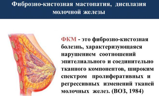 Диффузная фиброзно - кистозная мастопатия молочных желез