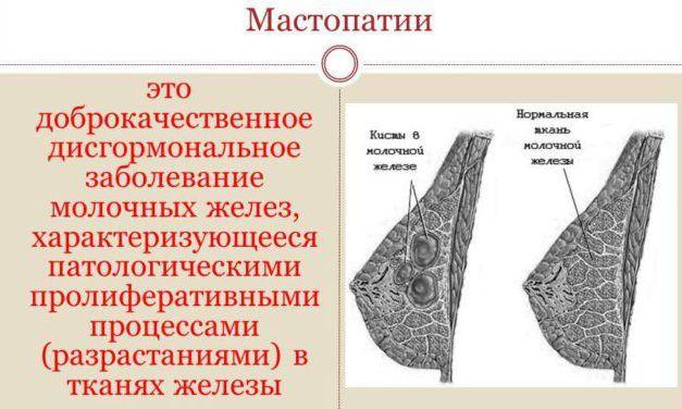 Классификация мастопатии