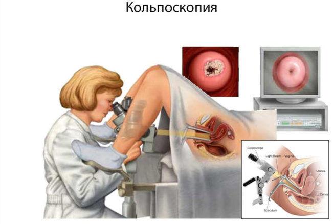 Биопсию шейки матки на мой гинеколог