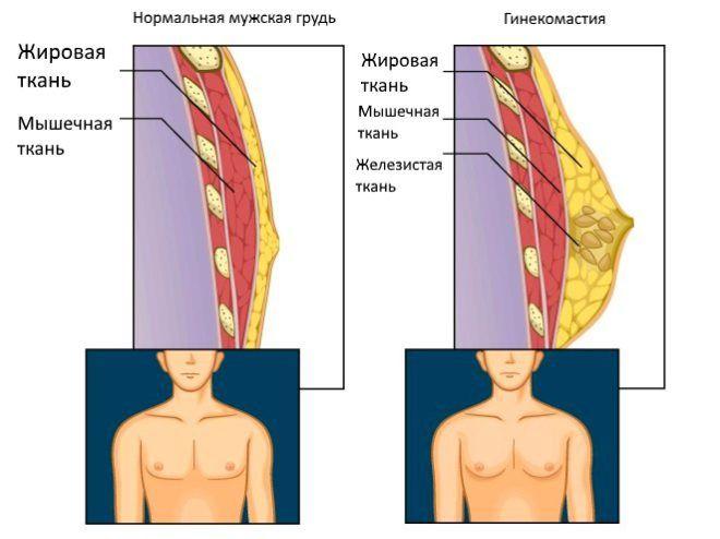 Наглядный пример гинекомастии