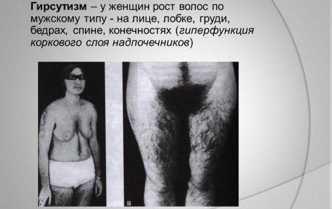 Рост волосяного покрова по мужскому типу