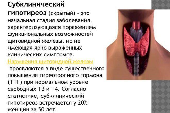 Субклинический синдром