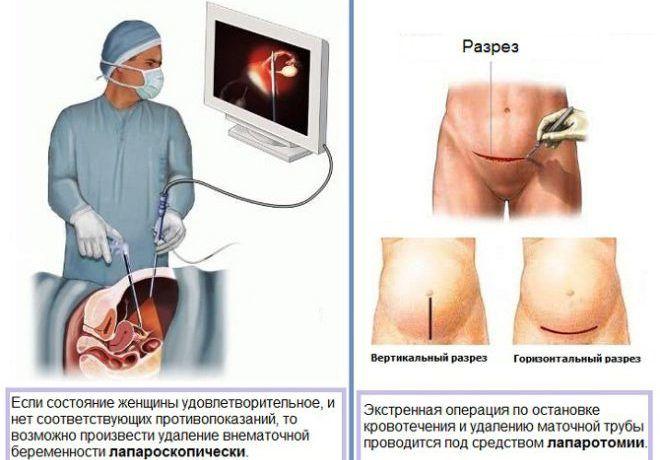 Удаление трубы при внематочной беременности