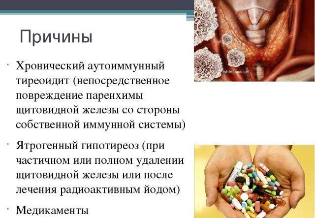 Аутоімунний тиреоїдит щитовидної залози — що це таке? » журнал здоров'я iHealth
