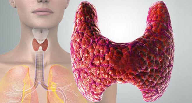 Боль в щитовидке