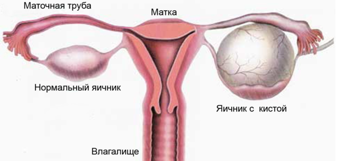 Залозисто-кістозна мастопатія молочної залози - що це? » журнал здоров'я iHealth 1