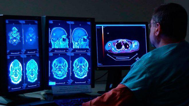 Кіста пінеальної (шишкоподібної) залози головного мозку: симптоми і наслідки » журнал здоров'я iHealth 4