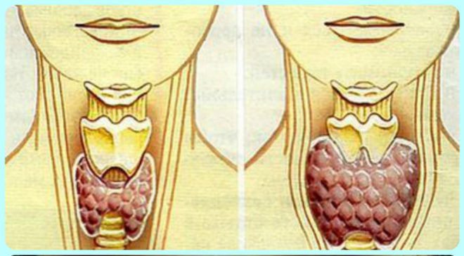 Фолликулярная опухоль щитовидной железы