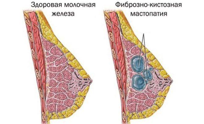 Формы мастопатии