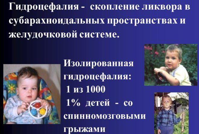 Кіста пінеальної (шишкоподібної) залози головного мозку: симптоми і наслідки » журнал здоров'я iHealth 6