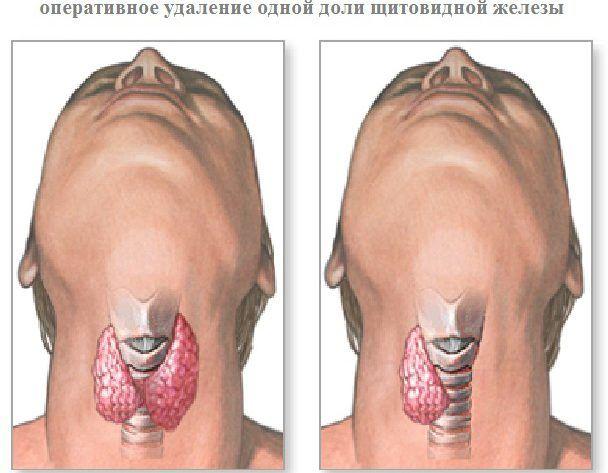 Таблиця норм розмірів вузлів щитовидної залози » журнал здоров'я iHealth 1