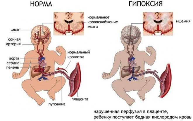 Гипоксия плода