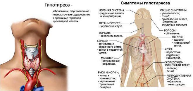 Аутоімунний тиреоїдит щитовидної залози — що це таке? » журнал здоров'я iHealth 3