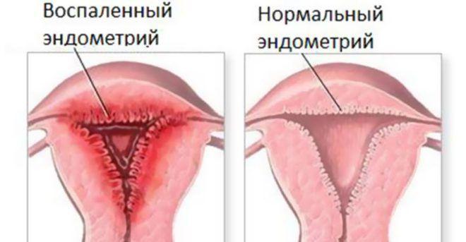 Как выявить болезнь