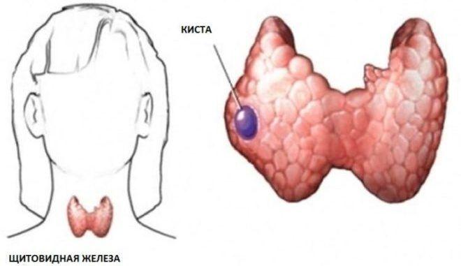 Кистозная дегенерация щитовидной железы