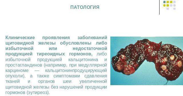 Клинические проявления заболеваний щитовидной железы