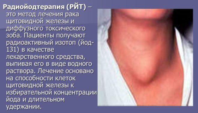 Лечение йодом щитовидки