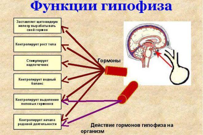 Новообразования гипофиза