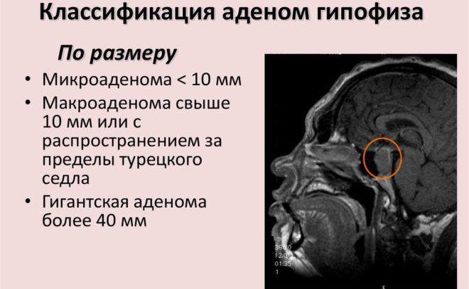 Общая характеристика гипоталамо-гипофизарных заболеваний