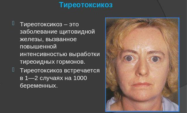Описание тиреотоксикоза