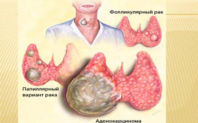 Папилярная карцинома