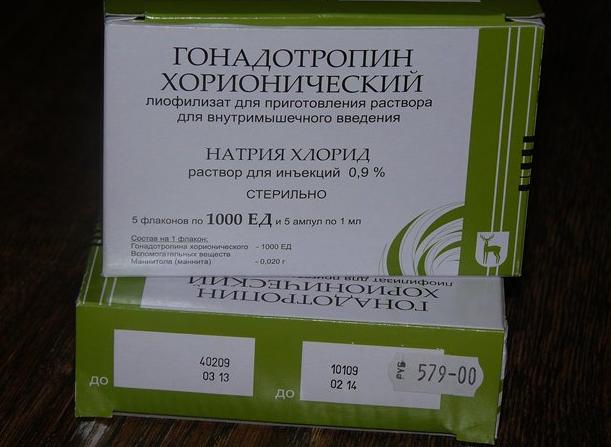 Гонадотропин хорионический при неподвижности спермы