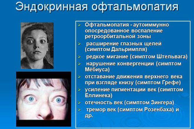 Причины развития эндокринной офтальмопатии