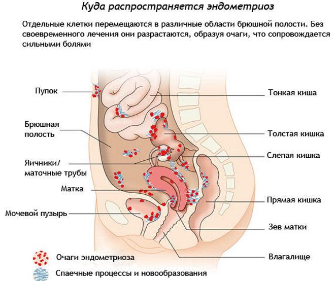 Профилактика эндометриоза