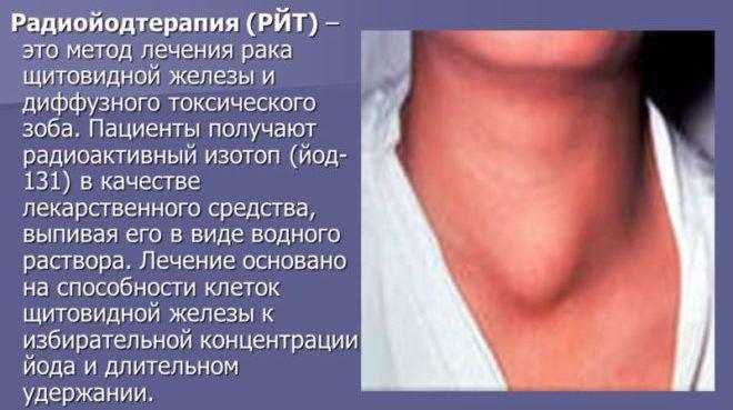 Радиойодтерапия