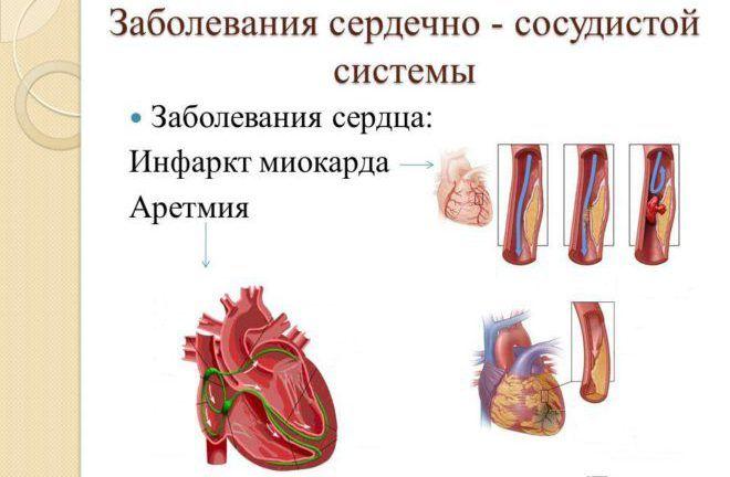 Расстройства сердечно-сосудистой системы