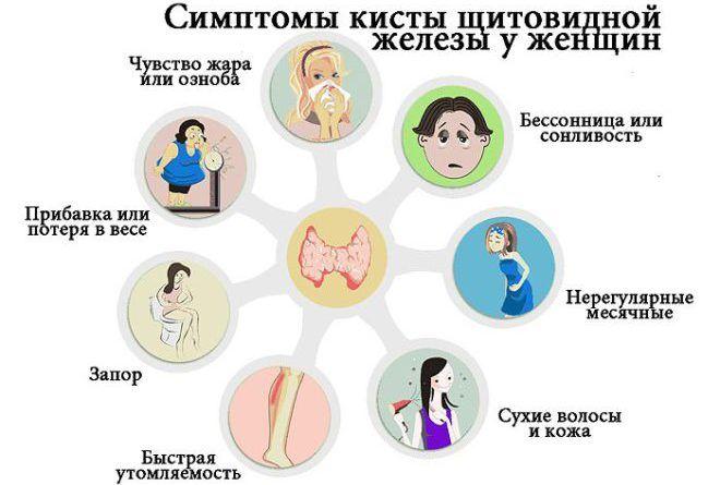 Симптомы кисты щитовидной железы у женщин