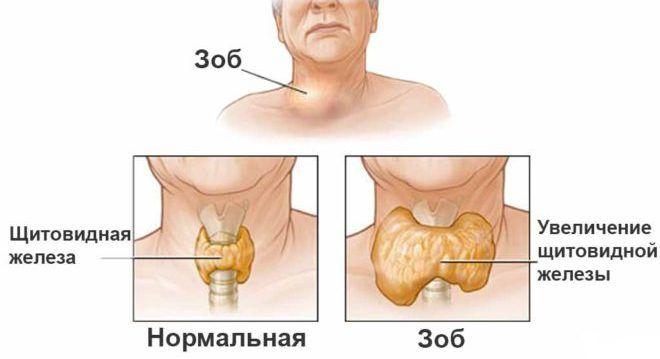 Симптомы зоба
