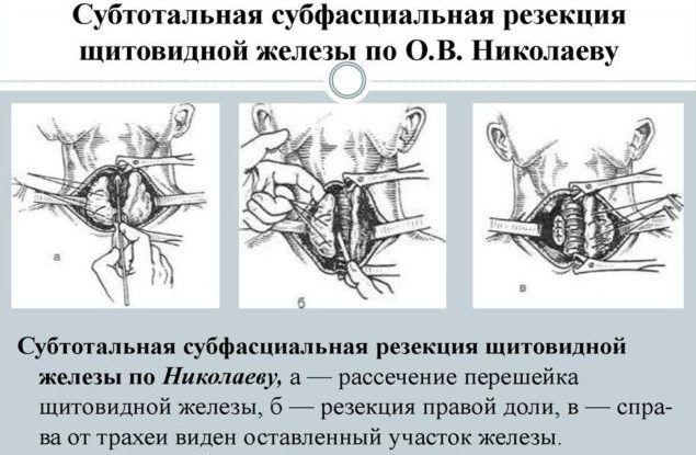 Субтотальная резекция щитовидной железы