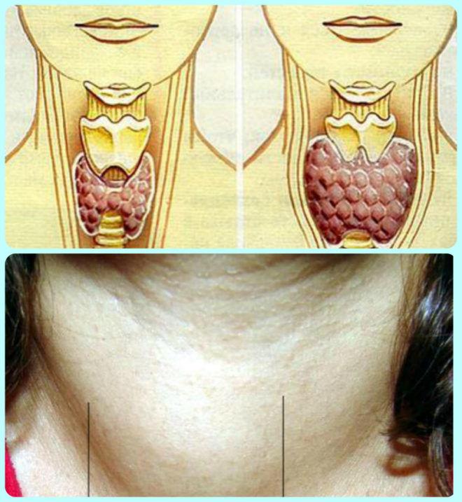 Так выглядит аденома щитовидной железы
