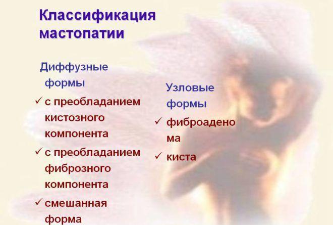 Виды мастопатии