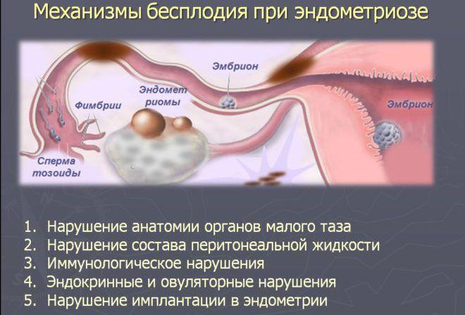 Зачатие при эндометриозе