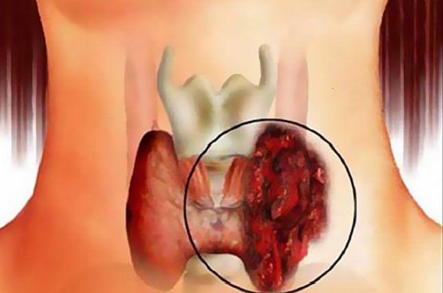 Злокачественного опухоль в щитовидной железе