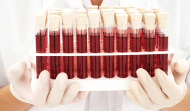 Анализ на определение уровня прогестерона