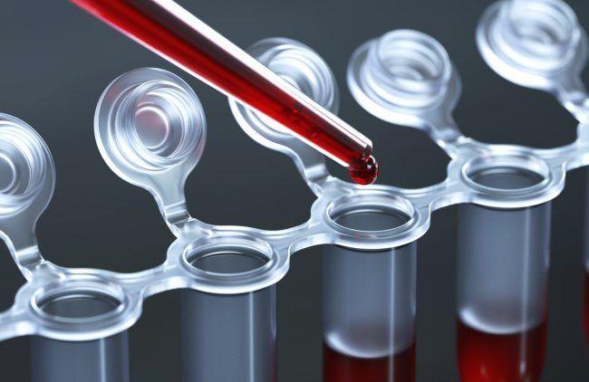Анализ на содержание в крови гормонов