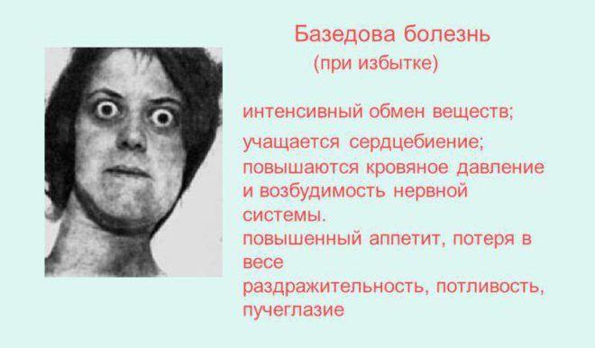 Базедова болезнь