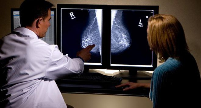 Биопсия мастопатии