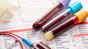 Что бы выявить в организме гормональные нарушения, нужно сдать анализ крови