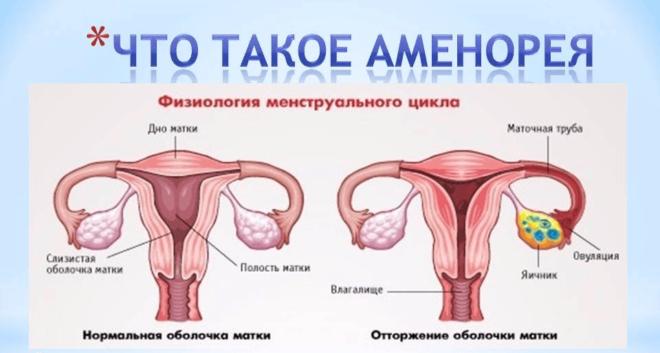 Что такое аменорея