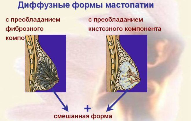 Диффузная форма мастопатии