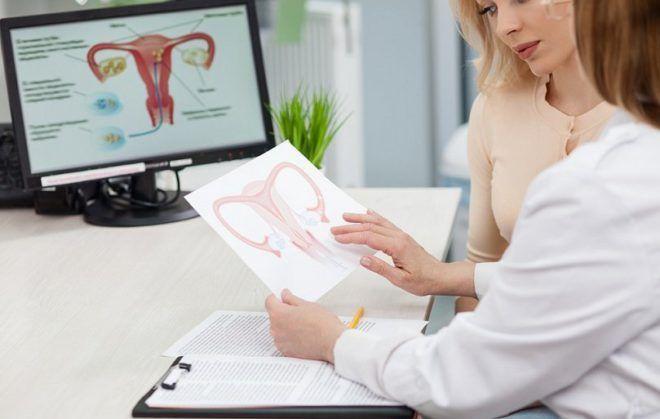 Эндометриоз 1–4 степени