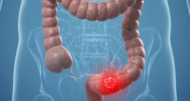 Эндометриоз кишечника