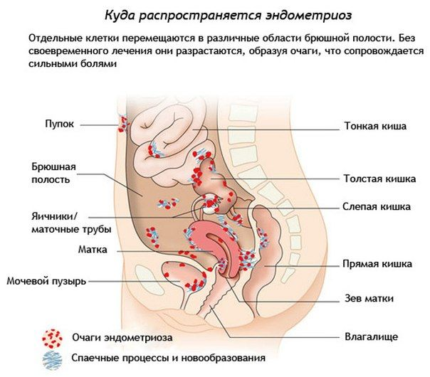 Эндометриоз, куда распространяется
